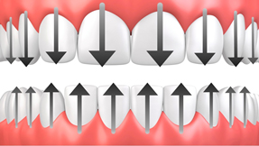 Brossage des dents et des gencives - Dentiste Toulouse