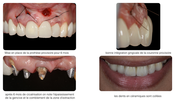 Corrections gingivales Dentiste Toulouse