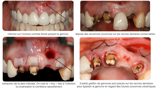 Corrections gingivales - Dentiste Toulouse