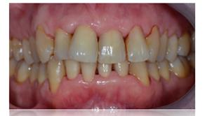 Fin de seance de maintenance - Dentiste Toulouse