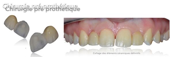 La chirurgie plastique pre prothetique Dentiste Toulouse