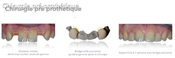La chirurgie plastique pre prothetique Dentiste Toulouse 31