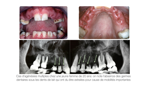 Implant dentaire Toulouse