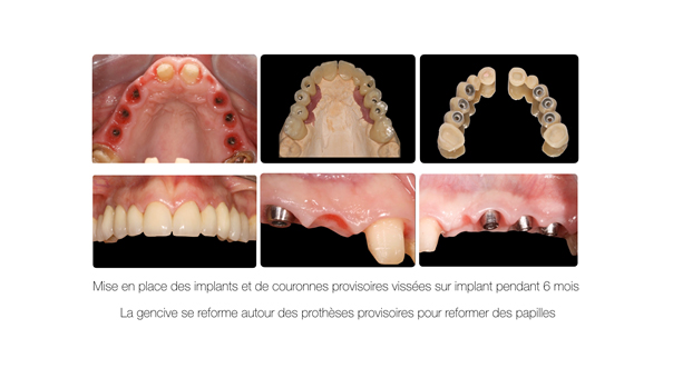 Implant dentaire et couronne dentaire Toulouse