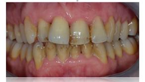 Presence d inflammation de tartre - Dentiste Toulouse
