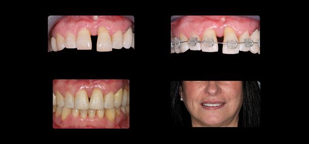 Parodontologie Toulouse