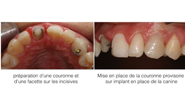 Implant dentaire Toulouse - Dentiste Toulouse