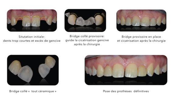 Parodontologie dentaire Toulouse